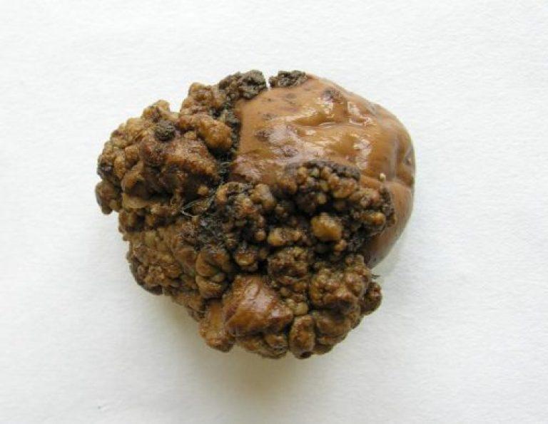синхитриум